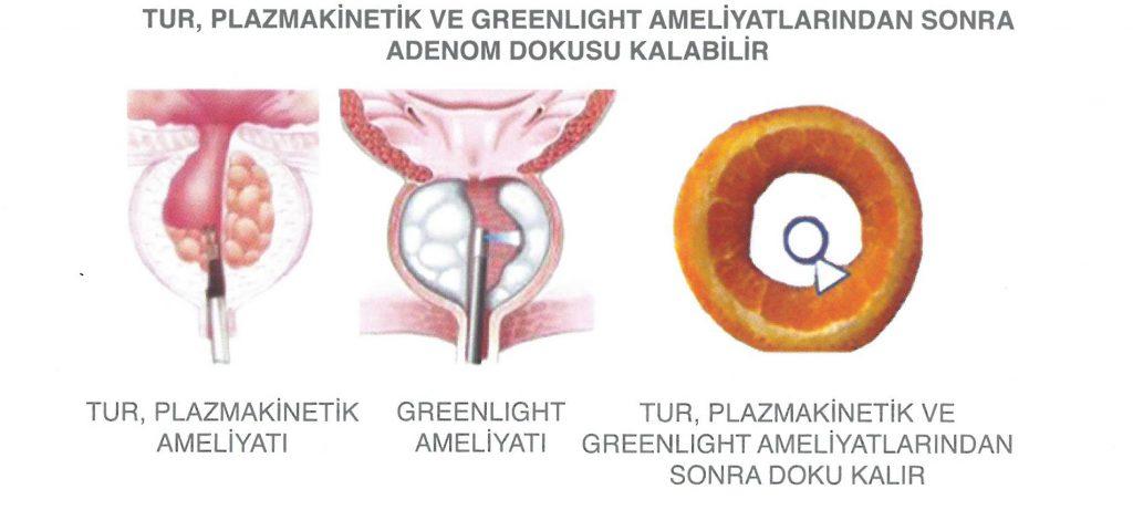 TUR, Plazmakinetik veya Greenlight Ameliyatlarından Sonra Adenom Dokusu Kalabilir.