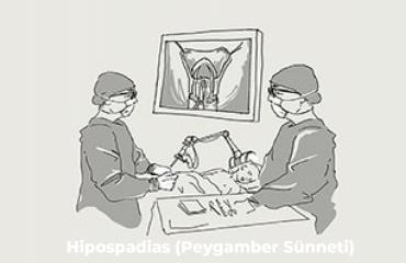 Hipospadias (Peygamber Sünneti) Nedir? Nasıl Tedavi Edilir?