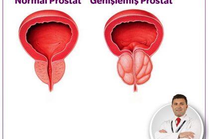 Benign Prostat Hiperplazisi (Prostat Büyümesi)