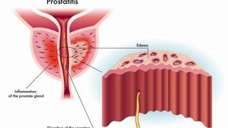 Prostatit - Prostat İltihabı Nedir ?