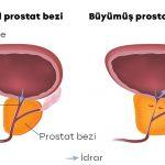 İyi Huylu Prostat Büyümesi (BPH)