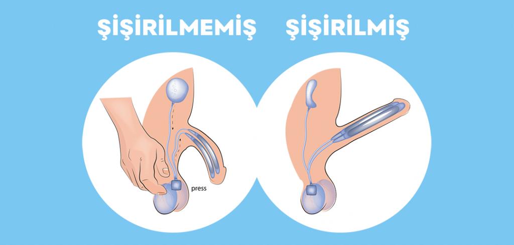 Penil Protez İmplantasyonu (Mutluluk Çubuğu) Çeşitleri